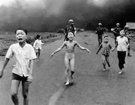 A young Vietnamese girl suffering USAF inflicted napalm burns in 1972